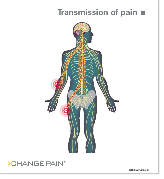 transmission_of_pain